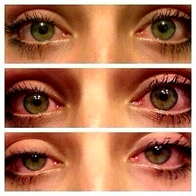 eyes, pot, dope and stoned
